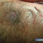 عکس از عفونت کیست مویی