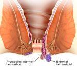 جراحی با لیزر بیماری های مقعدی و درمان آن