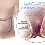 درمان بواسیر خارجی | هموروئید ترومبوزه