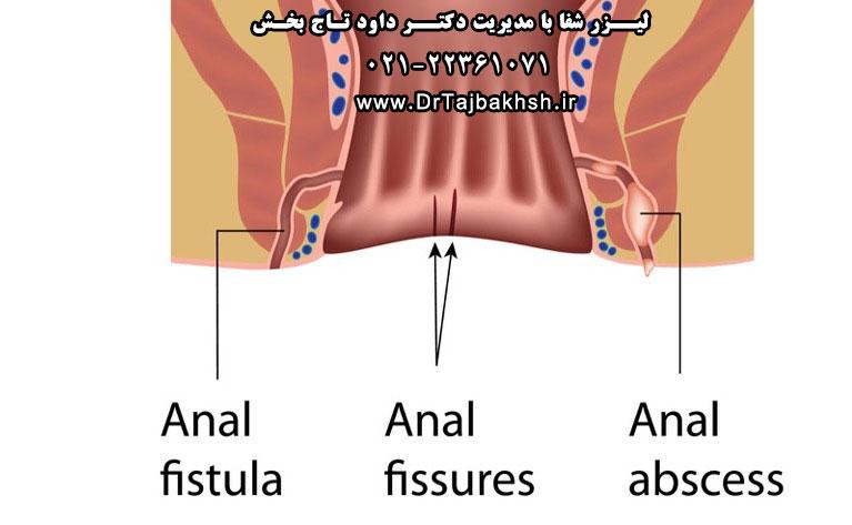 تشخیص فیستول مقعد