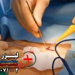 مقایسه جراحی باز با لیزر کیست مویی