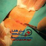 جراحی سنتی به روش باز کیست مویی