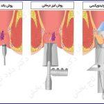 درمان سریع هموروئید (بواسیر)