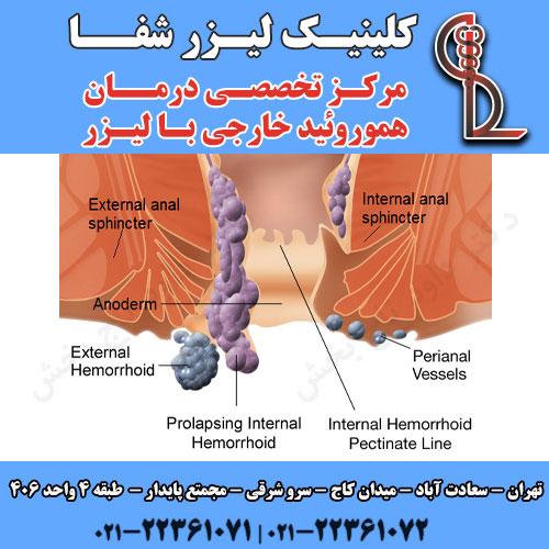 درمان بواسیر خارجی با لیزر