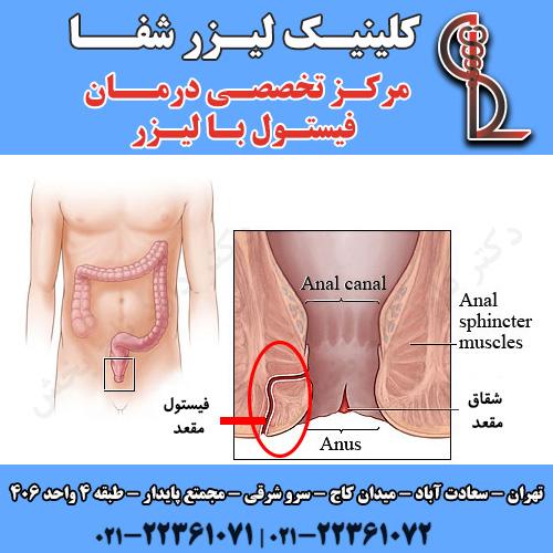 درمان فیستول مقعد با لیزر